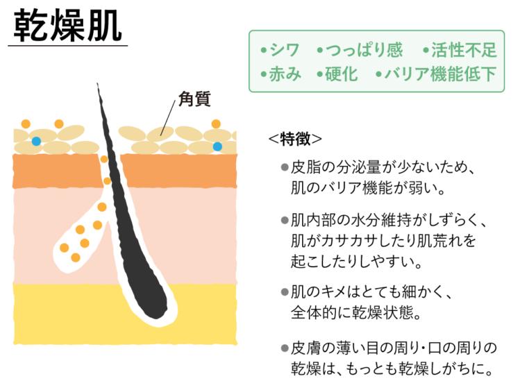 乾燥肌の特徴