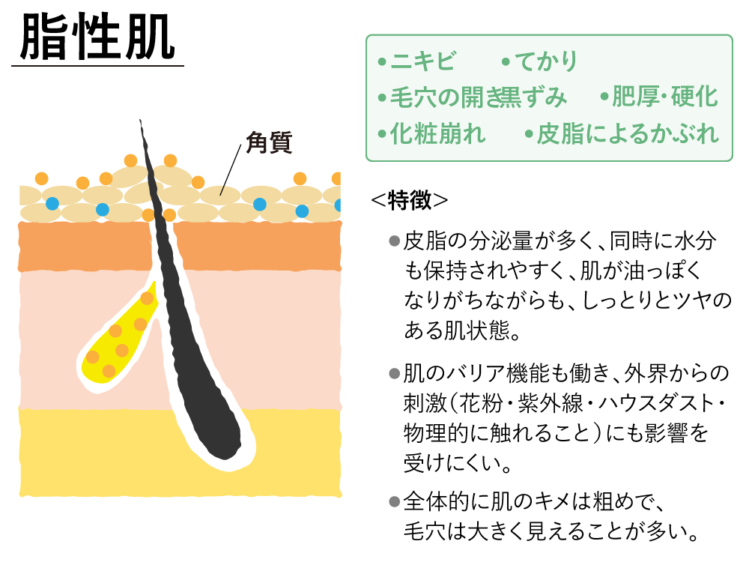 脂性肌の特徴