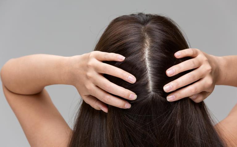 乾燥した頭皮をローションやオイルよりも効果的に保湿する3つの方法