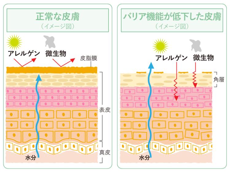 正常な肌と、乾燥してバリア機能が弱った肌の違い