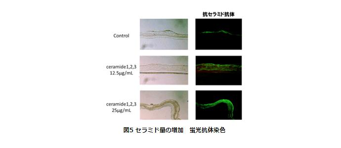 セラミド量の増加、蛍光抗体染色