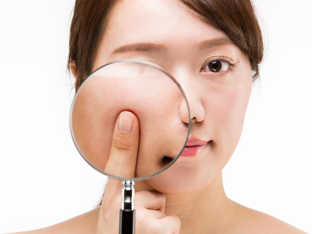 皮膚の常在菌