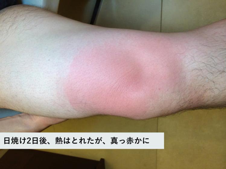 日焼け2日後、熱はおさまったが、肌は真っ赤かに