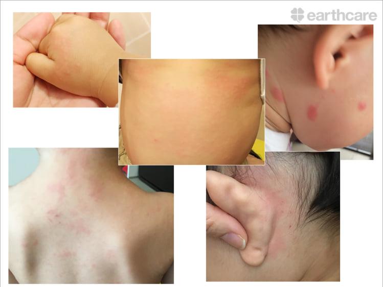 子供の肌荒れ・湿疹の変遷