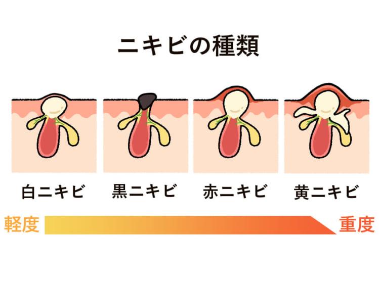 ニキビの種類