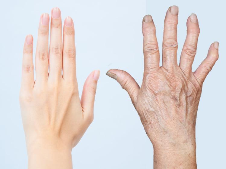 手の甲の比較イメージ
