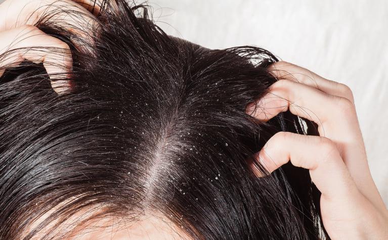頭皮のトラブル原因と対策