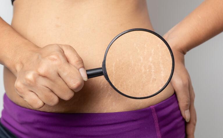 妊娠線の予防