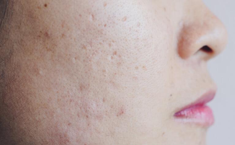 肌のデコボコを治す方法