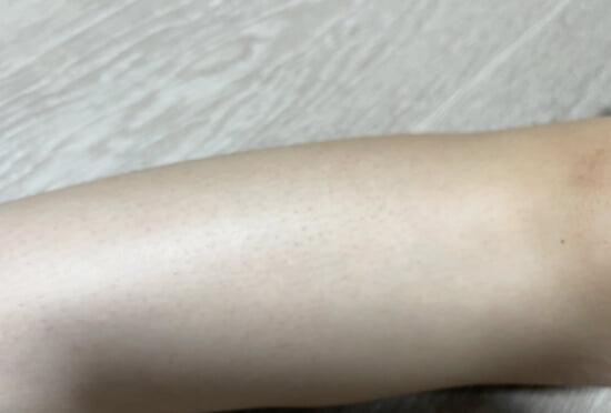 足の毛穴が目立つ原因と対策